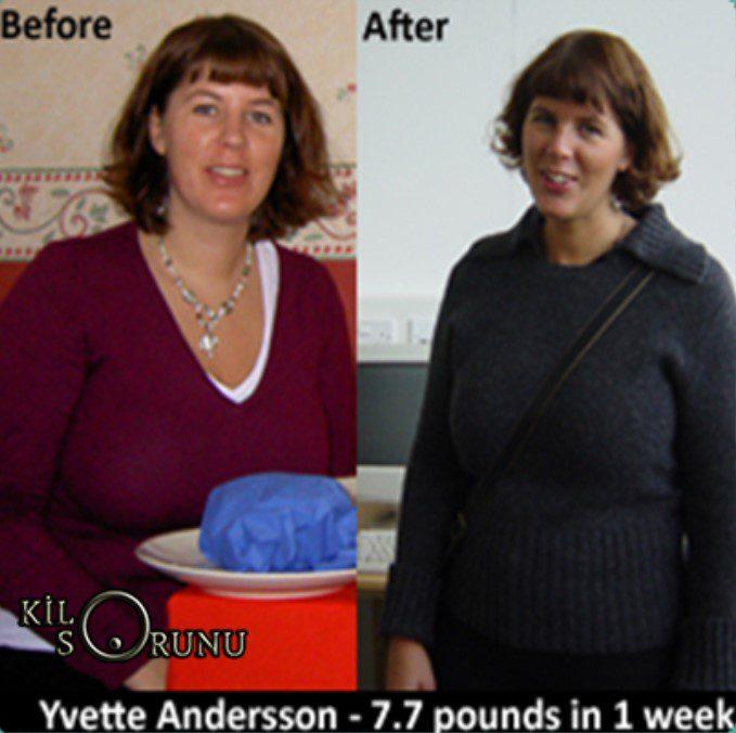isveç diyeti ile 1 haftada 4 kilo veren kadın