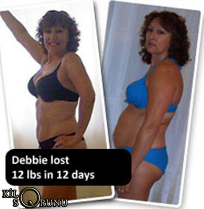 isveç diyeti ile 6 kilo veren kadın