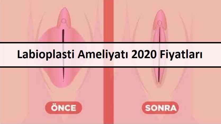 Labioplasti Ameliyatı 2020 Fiyatları
