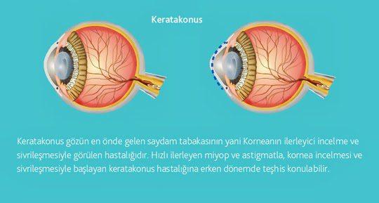 Koretokonus Hastalığı