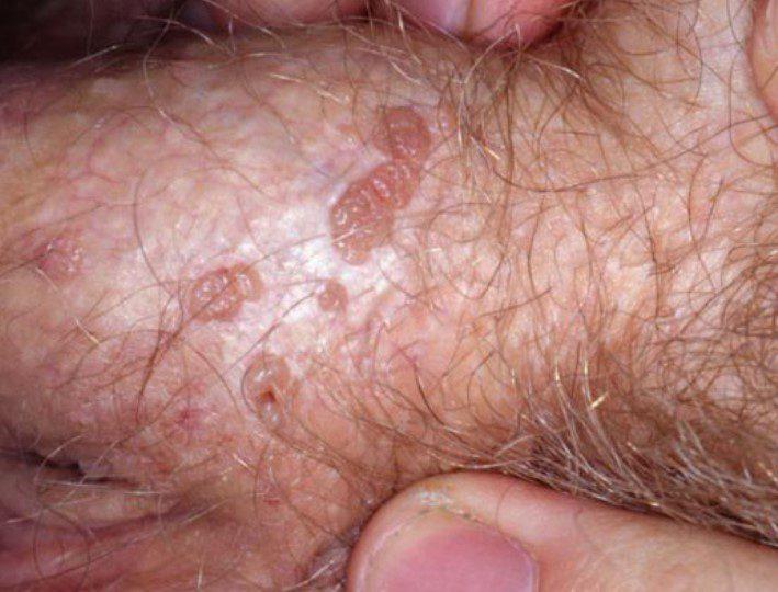 Cinsel Organda Oluşan Siğil Görselleri