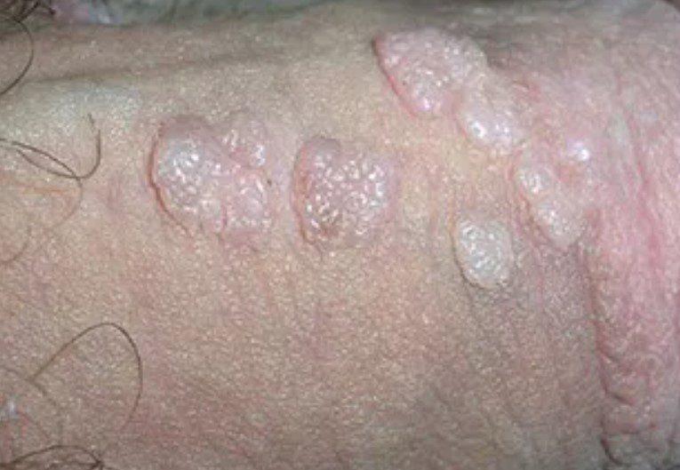 HPV Enfeksiyonu Genital Siğiller