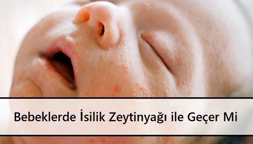 Bebeklerde İsilik Zeytinyağı ile Geçer Mi